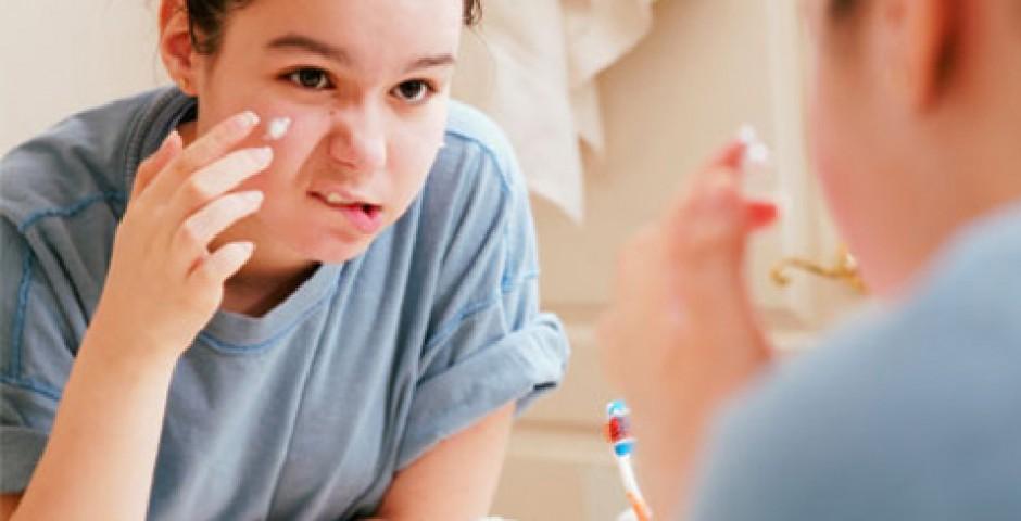 piel con acné del adolescente