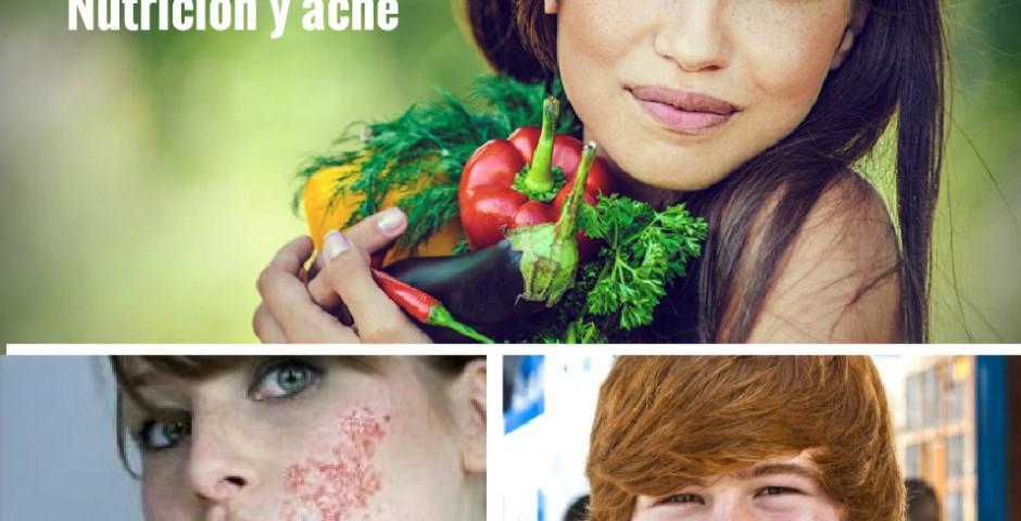 acné, barritos, alimentación
