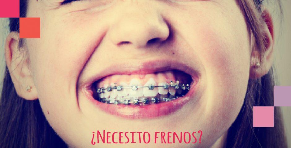 ortodoncia - frenos en la adolescencia